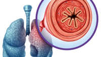 The importance of DLCO in diagnosing COPD.